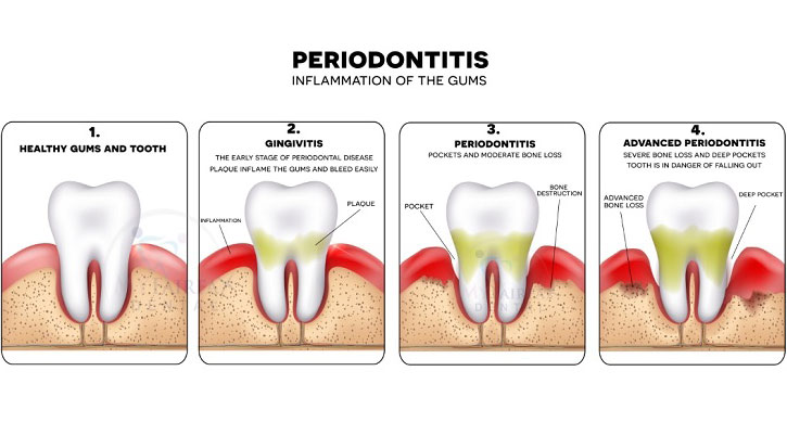 Early Warning of Signs Periodontal Disease: How to Treat ...