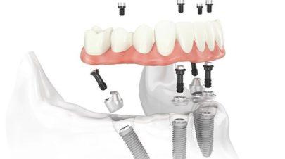Dental-Implants-Hurt