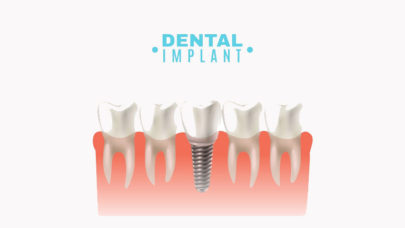 Dental Implants Health Risks Procedure
