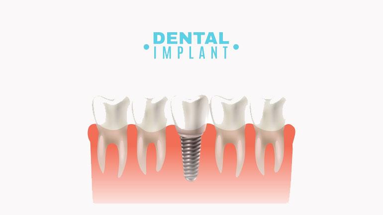 Dental Implants Health Risks Procedure