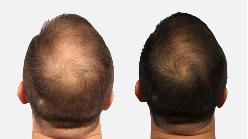 Signs Baldness And How Control