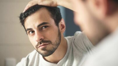 Signs-Hair-Thinning