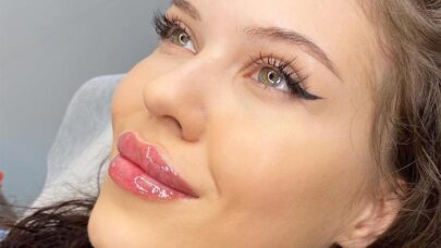Lips-Fillers-Things-Should-Know