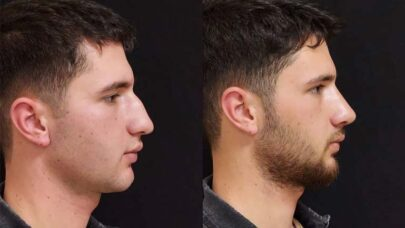 Ensuring-Rhinoplasty-Success