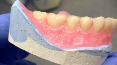 Partial Denture Implants