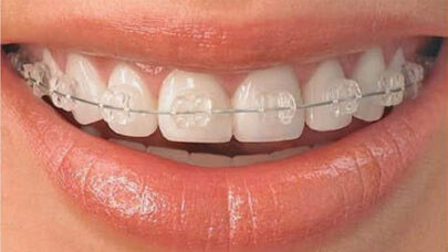 Clear-Braces-More-Expensive